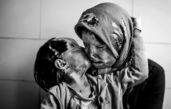 Acid Attack on Mother and Child